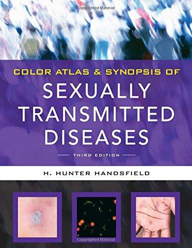 download Color Atlas & Synopsis of Sexually Transmitted Diseases