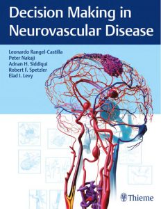download Decision Making in Neurovascular Disease