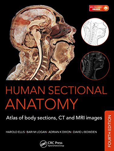 Human-Sectional-Anatomy Human Sectional Anatomy: Atlas of Body Sections, CT and MRI Images, 4th Edition